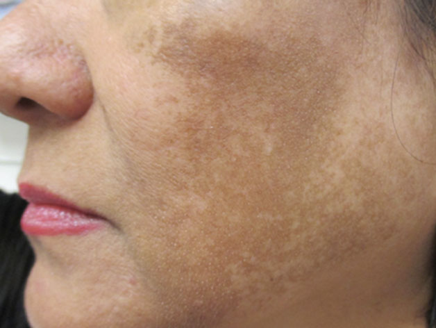 What is Melasma and Why Do I Have It